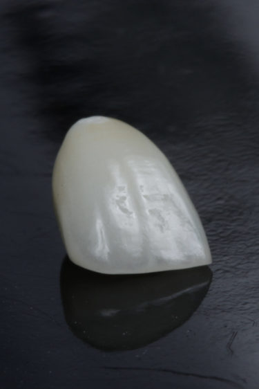 Zirconia Single Crown
